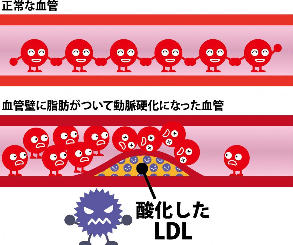 健康な血管と酸化したLDLによって動脈硬化が進んだ血管